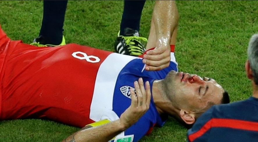Numa disputa de bola, Dempsey levou a pior e caiu no gramado sangrando. (Foto: AP Photo/Hassan Ammar)